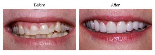 Gum Lift Plus Veneers case