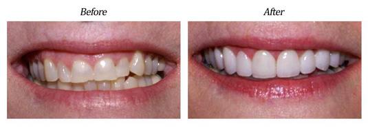Gum Lift Plus Veneers case