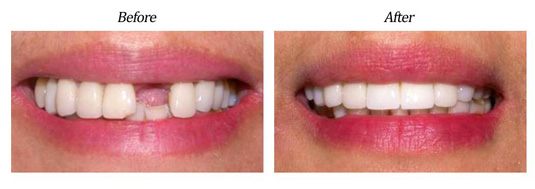 Implant Plus Porcelain Crowns case