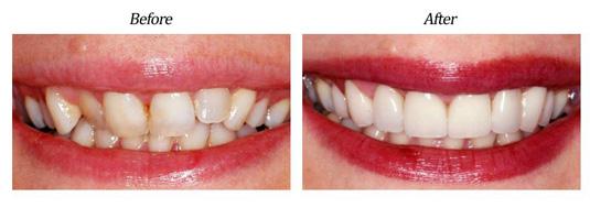 Instant Orthodontics case