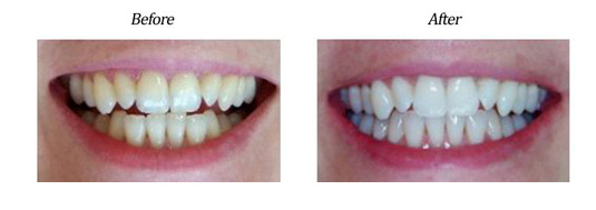 Zoom Teeth Whitening Case #1