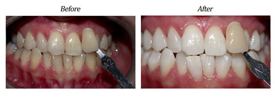Zoom Teeth Whitening Case #2